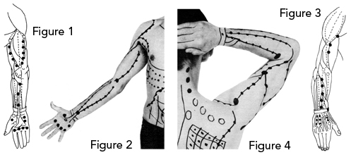 Arm and Hand Anterior And Posterior View with Trigger Points