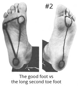 Good Foot vs Long Second Toe Foot
