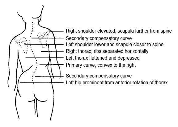 Scoliosis drawing from Myotherapy book
