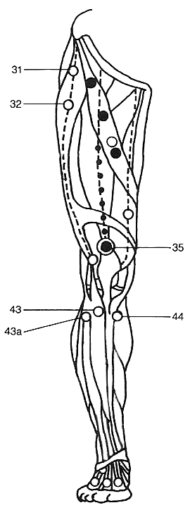 Trigger Points in the Quadriceps