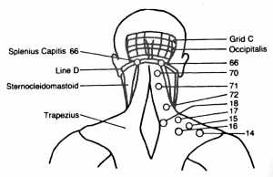 Bonnie Prudden Back of head neck shoulders